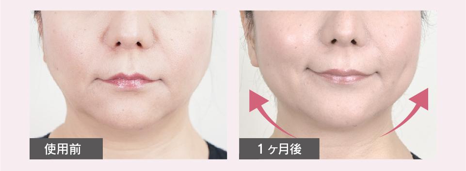 フェイスケア。独自開発のもみ玉が顔の筋肉をとらえ、心地よい刺激で、頭皮~顔全体をトリートメント